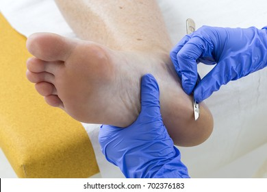 Woman receiving podiatry treatment in a Day Spa or in a podologist salon Podology treatment