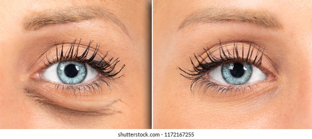 Woman red eye before and after eye bags removal