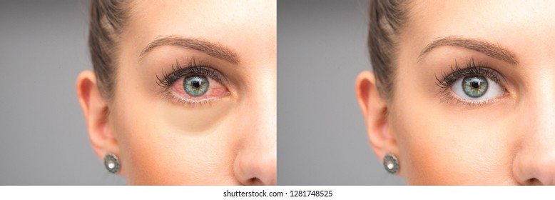 Woman red eyes before and after eye drops wash