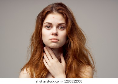 Woman red hair acne on face.
