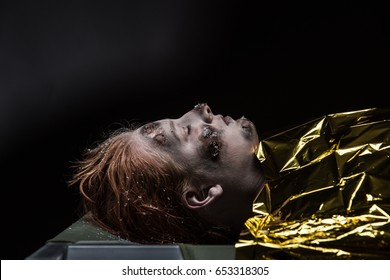 Woman with rescue blanket around her and frostbite wounds on her face lies with her eyes closed