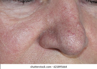 Woman with rosacea, psoriasis skin disease. Couperose.