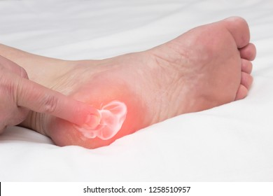 A woman rubs a healing balm cream for the treatment of thorns and osteophytes, a spot spur in the heel, removal of inflammation, close-up, medical