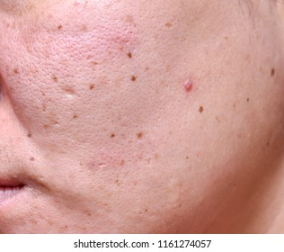 Woman 's problematic skin , acne scars ,oily skin and pore, dark spots and blackhead and whitehead on the face.
