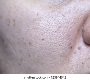 Woman 's problematic skin , acne scars ,oily skin and pore and blackhead on the face.