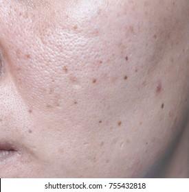 Dark Spots Face Images, Stock Photos & Vectors | Shutterstock