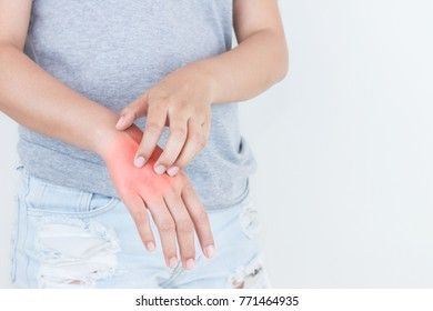 Woman scratching the itch on her hand, Healthcare Concept.