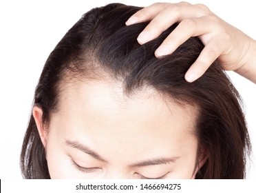 Woman serious hair loss problem for health care shampoo and beauty product concept, selective focus