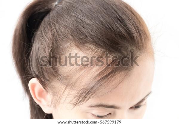 Vrouw ernstige haaruitval probleem voor de gezondheidszorg shampoo en beauty product concept