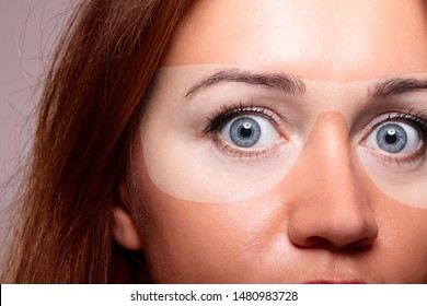 Woman with severe skin sunburn under sunglasses