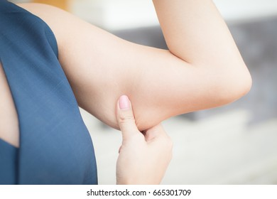 the woman show her fat arm