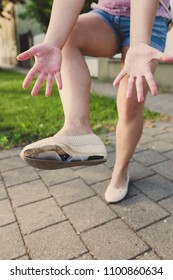 Woman show her shoes worn out