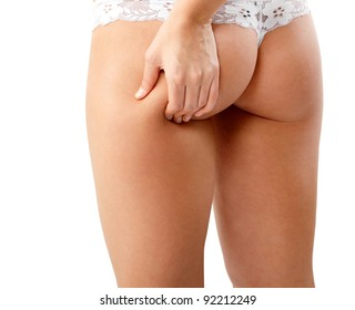 woman showing cellulite on her hips