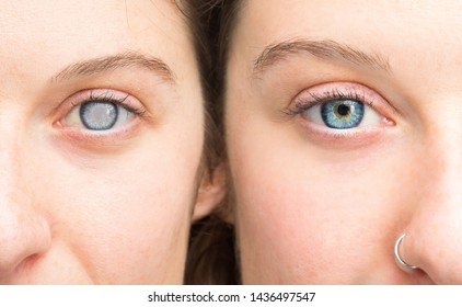 Woman showing eyes before and after cataract removal and corneal cleansing
