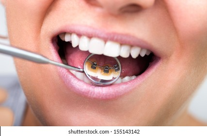 woman showing  invisible lingual braces on dental mirror