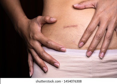 Woman showing on your stomach with a appendicitis scar, Appendicitis scar on the woman stomach.