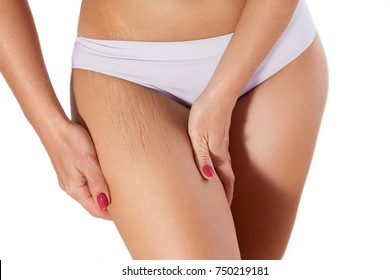 Woman showing stretch marks on legs