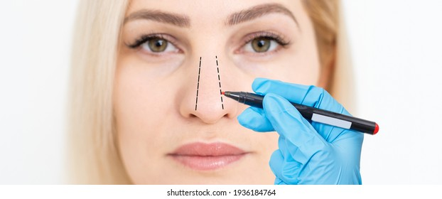 woman shows her nose for plastic surgery. Doctor plastic surgeon marks with a felt-tip pen a marker for a surgical operation