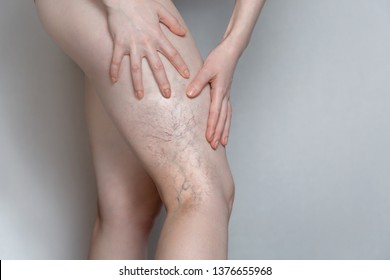 Woman shows leg with varicose veins. The concept of human health and disease. Gray background.