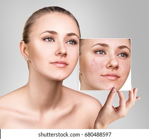 Woman shows photo with bad skin before treatment.