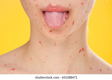 Woman shows tongue, woman is sick with chickenpox on yellow background
