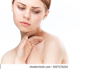 woman was sick with rubella, fatigue
