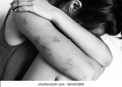 a woman sitting on ground with arm around knee and lower head, bruises on body, Sexual violence, sexual abuse, human trafficking in white tone
