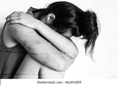 a woman sitting on ground with arm around knee and lower head, bruises on body, Sexual violence , sexual abuse,human trafficking with barbed fence in white tone