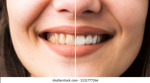 Woman smile before and after bleaching as perfect white denture concept