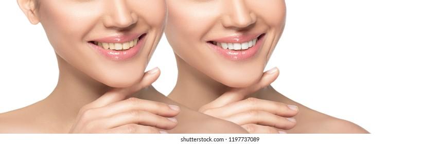 woman smile before and after whitening teeth or applying dental Veneers