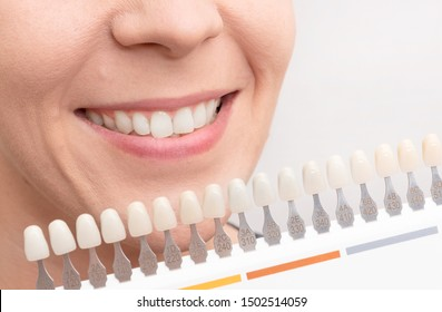 Woman smile with healthy teeth whitening. Dental care concept.