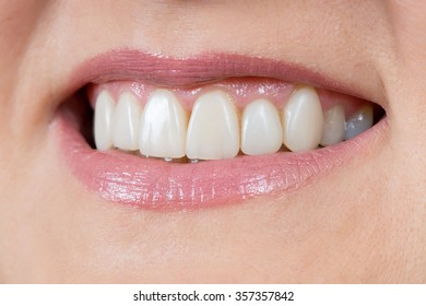 Woman smile. Teeth restoration. Dental care. Macro.