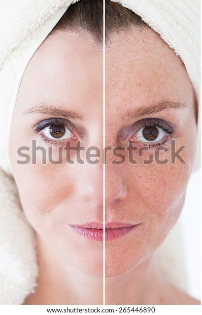 Woman Spotty Skin Deep Pores Blackhead Stock Photo (Edit Now) 265446890