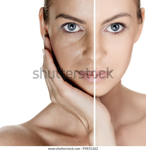 Woman Spotty Skin Deep Pores Blackhead Stock Photo (Edit Now