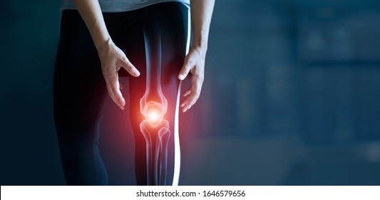 Woman suffering from pain in knee, Injury from workout and osteoarthritis, Tendon problems and Joint inflammation on dark background.