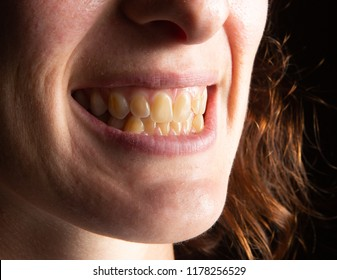 Woman suffering from yellowing of teeth