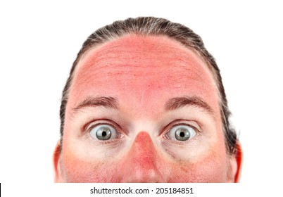 Woman with Sunglasess sunburn