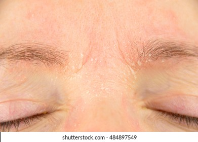 woman with symptom of atopic dermatitis on brow and brows