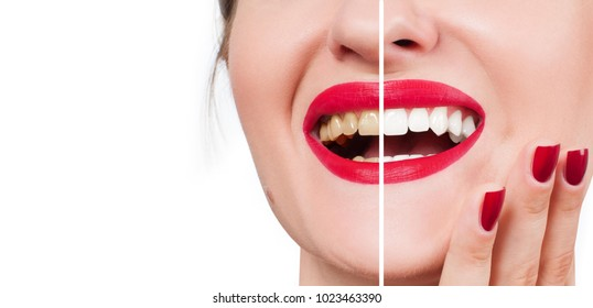 Woman teeth before and after bleaching. Whitening teeth.