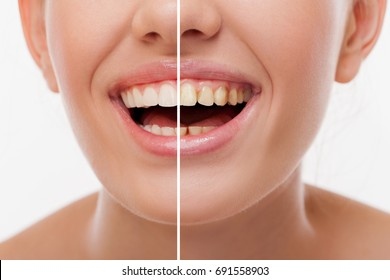 Woman Teeth Before and After Dental Treatment. Teeth Whitening. Happy Smiling Woman. Dental health Concept. Oral Care, Teeth Restoration. Perfect even Teeth