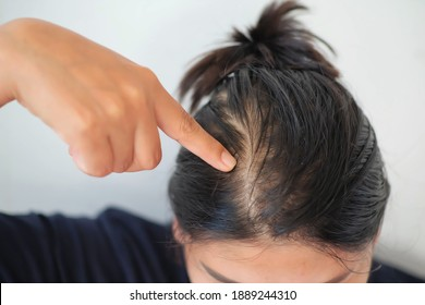 Woman with thin hair caused by hair loss symptoms.