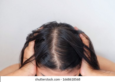 Woman with thin hair problem.