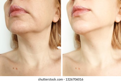 woman tightening the chin before and after the procedure