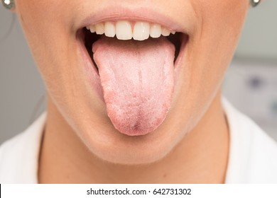 Woman with tongue with candidiasis