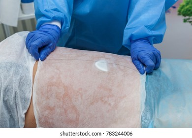 A woman undergoes the Carboxytherapy procedure on her stomach in a beauty salon. The doctor applies special paper sheets The procedure is based on oxygen CO2
