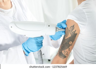Woman undergoing laser tattoo removal procedure in salon, closeup