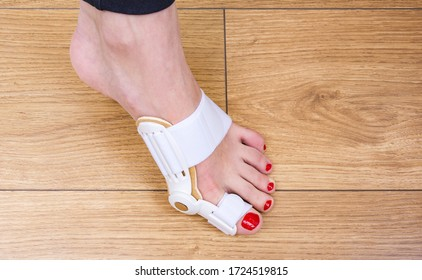 Woman uses a special medical splint or orthopedic holder to treat and prevent painful Hallux Valgus. Bunion on big toes of female feet.