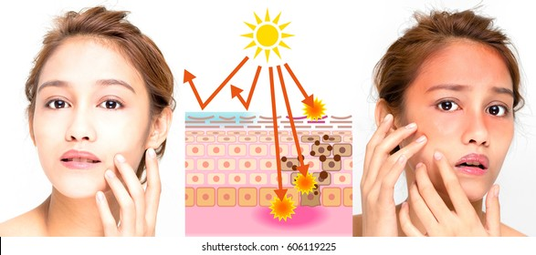 woman using sunscreen and woman getting sunburned