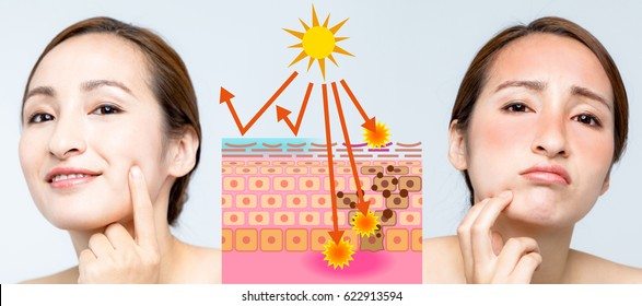 woman using sunscreen and woman getting sunburned. before after image.
