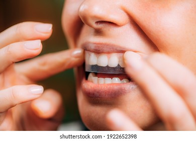 Frauen mit Whitening Stipes oder Whitestrips. Weiße Zähne zu Hause.